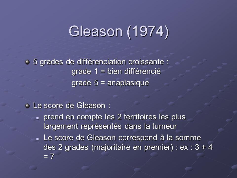 Gleason (1974) 5 grades de différenciation croissante : grade 1 = bien différencié. grade 5 = anaplasique.