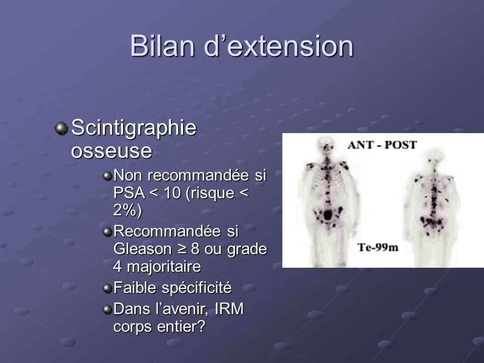 Bilan d'extension Scintigraphie osseuse