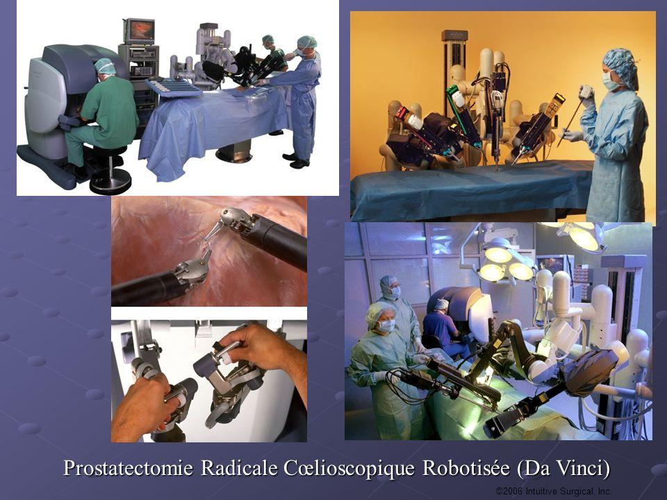 Prostatectomie Radicale Cœlioscopique Robotisée (Da Vinci)