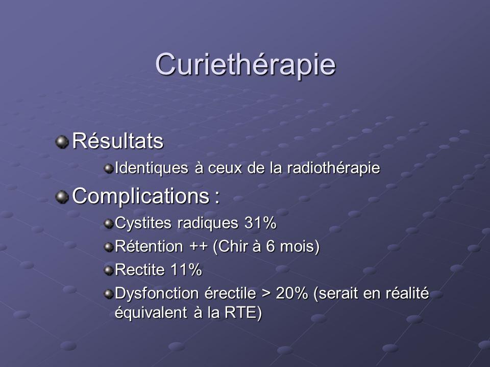 Curiethérapie Résultats Complications :
