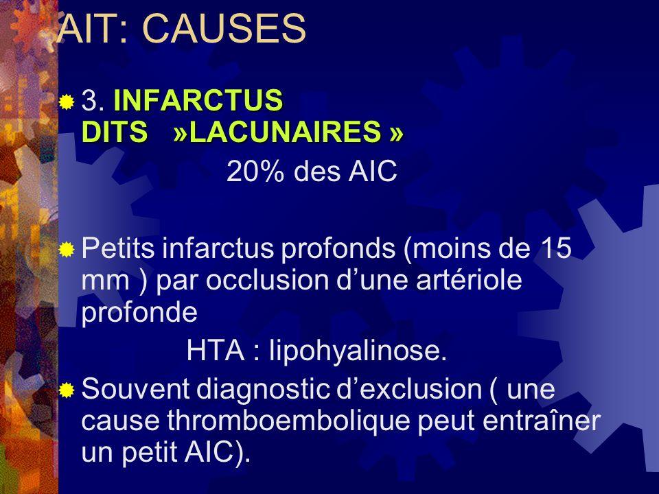 AIT: CAUSES 3. INFARCTUS DITS »LACUNAIRES » 20% des AIC