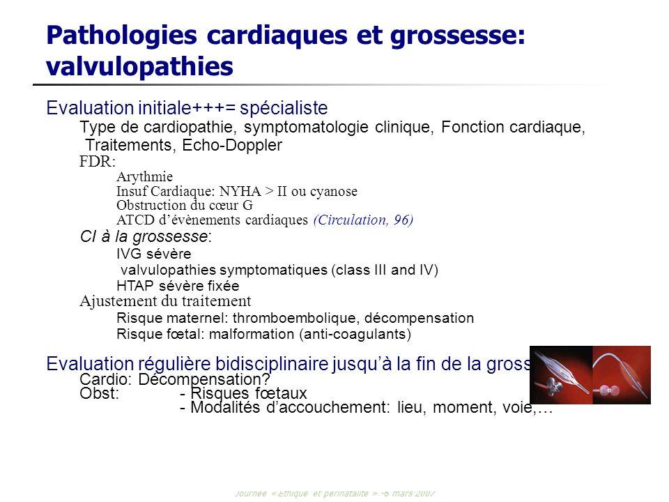 Pathologies cardiaques et grossesse: valvulopathies