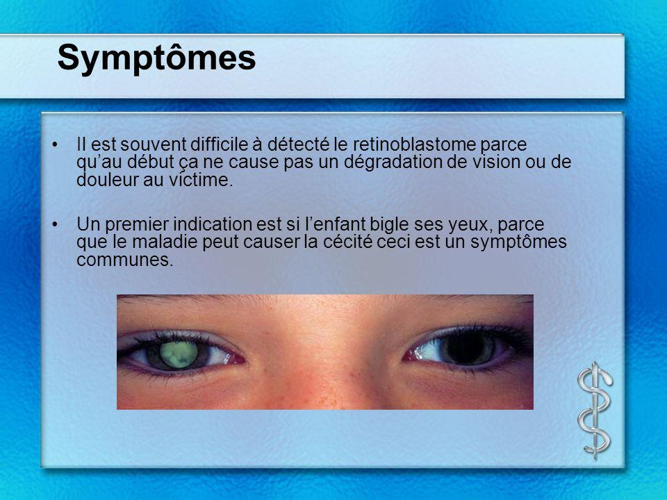 Symptômes Il est souvent difficile à détecté le retinoblastome parce qu'au début ça ne cause pas un dégradation de vision ou de douleur au victime.