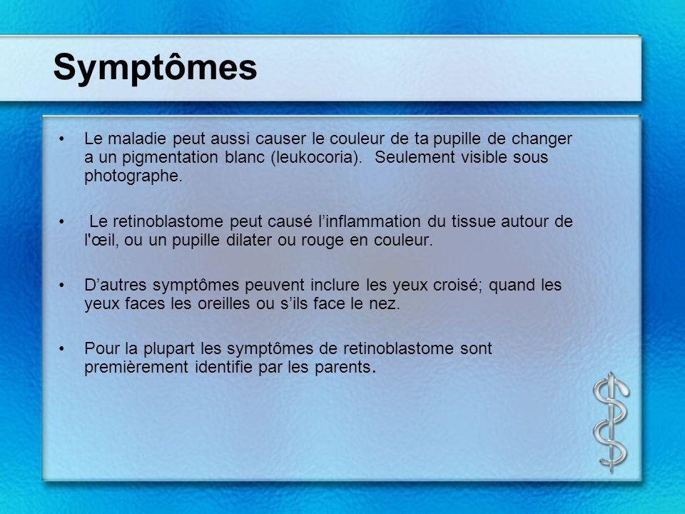 Symptômes Le maladie peut aussi causer le couleur de ta pupille de changer a un pigmentation blanc (leukocoria). Seulement visible sous photographe.
