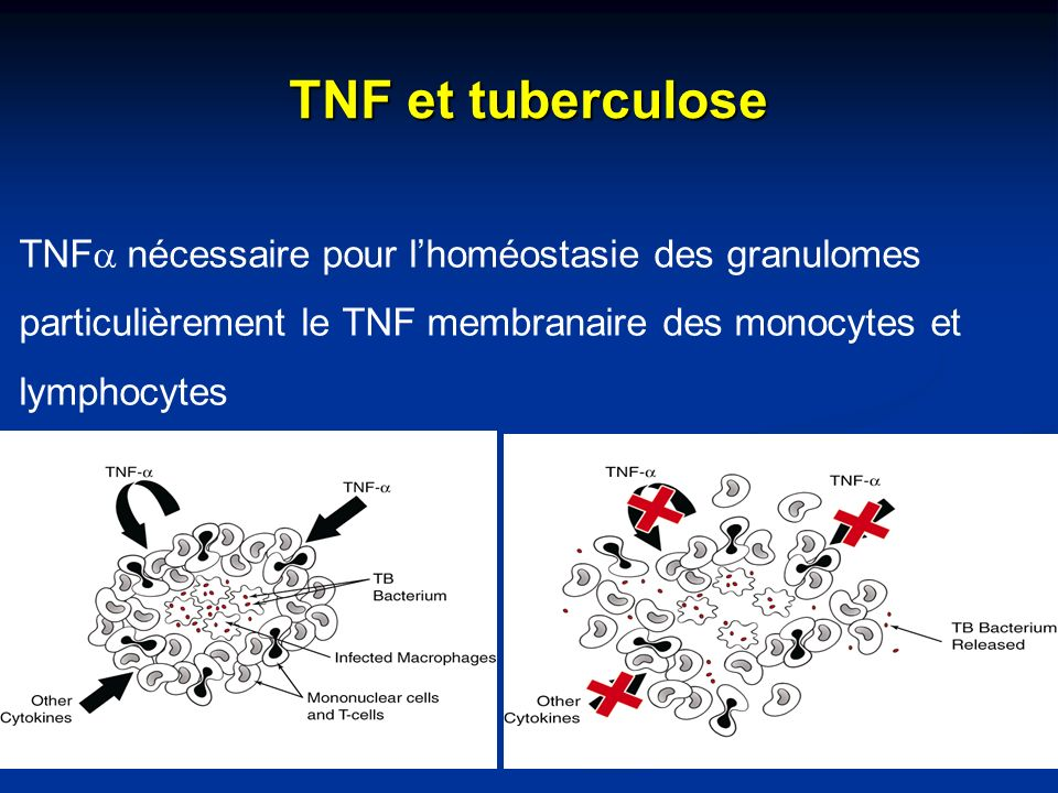 TNF et tuberculose TNFa nécessaire pour l'homéostasie des granulomes particulièrement le TNF membranaire des monocytes et lymphocytes.