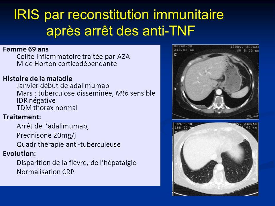 IRIS par reconstitution immunitaire après arrêt des anti-TNF