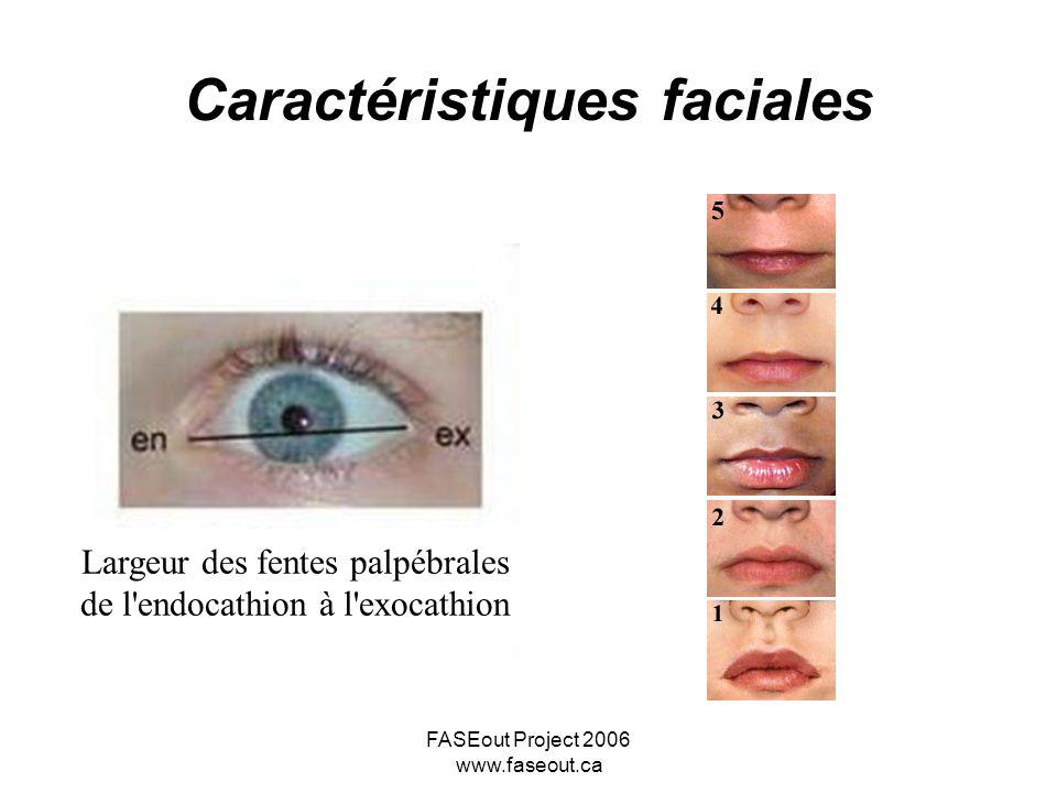 Caractéristiques faciales