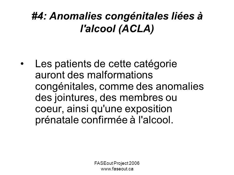 #4: Anomalies congénitales liées à l alcool (ACLA)