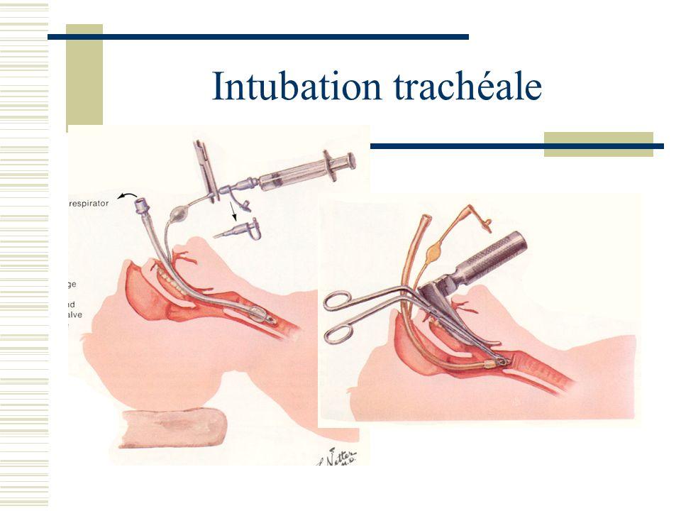 Intubation trachéale