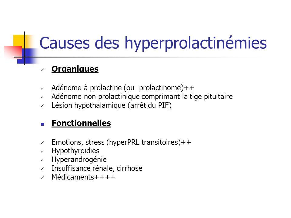 Causes des hyperprolactinémies
