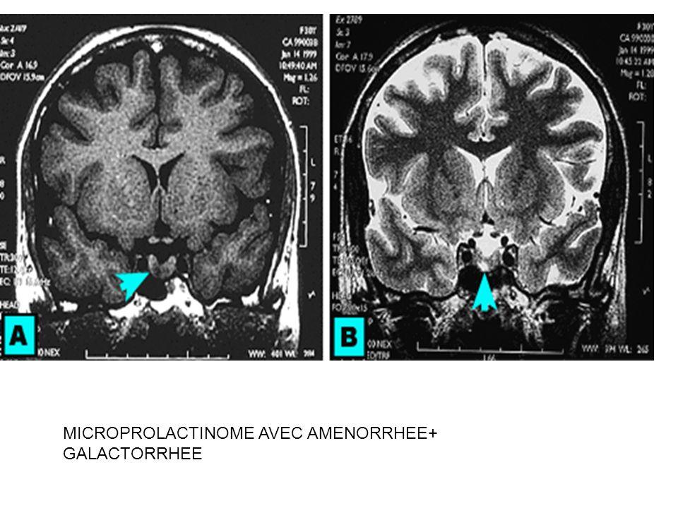 MICROPROLACTINOME AVEC AMENORRHEE+ GALACTORRHEE