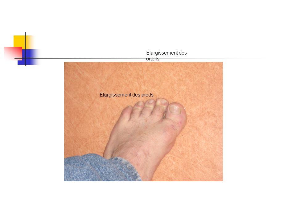 Elargissement des orteils