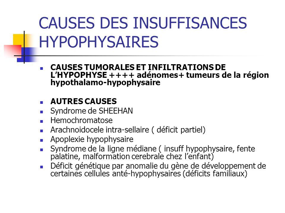 CAUSES DES INSUFFISANCES HYPOPHYSAIRES