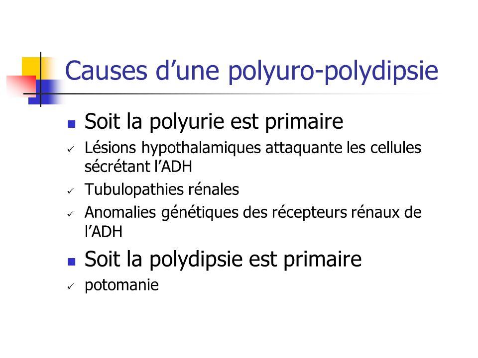 Causes d'une polyuro-polydipsie