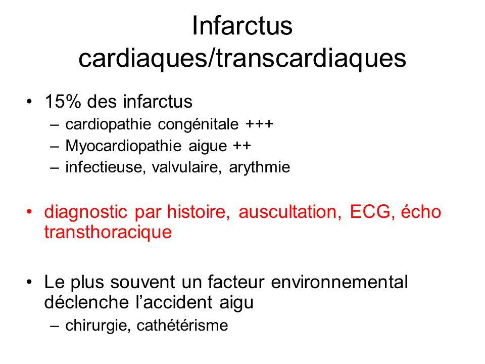 Infarctus cardiaques/transcardiaques
