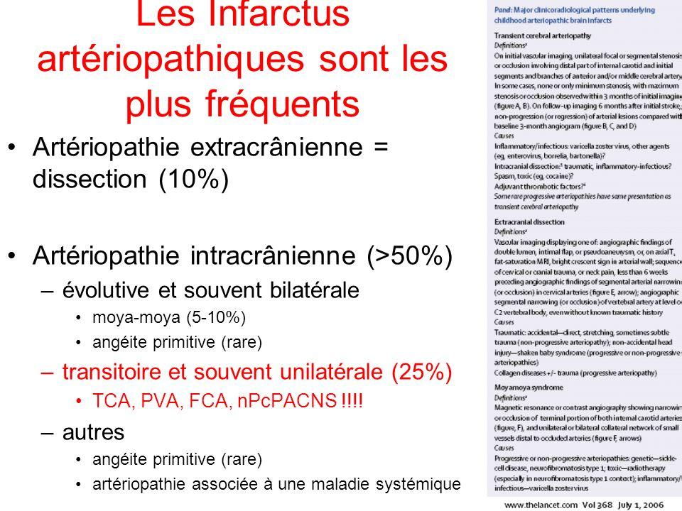 Les Infarctus artériopathiques sont les plus fréquents