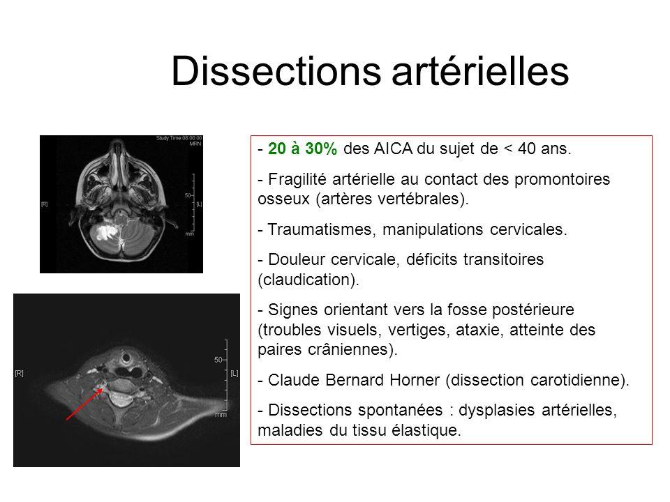 Dissections artérielles