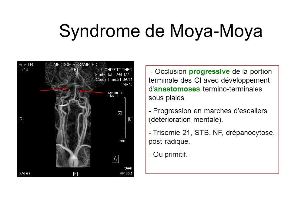 Syndrome de Moya-Moya - Occlusion progressive de la portion terminale des CI avec développement d'anastomoses termino-terminales sous piales.