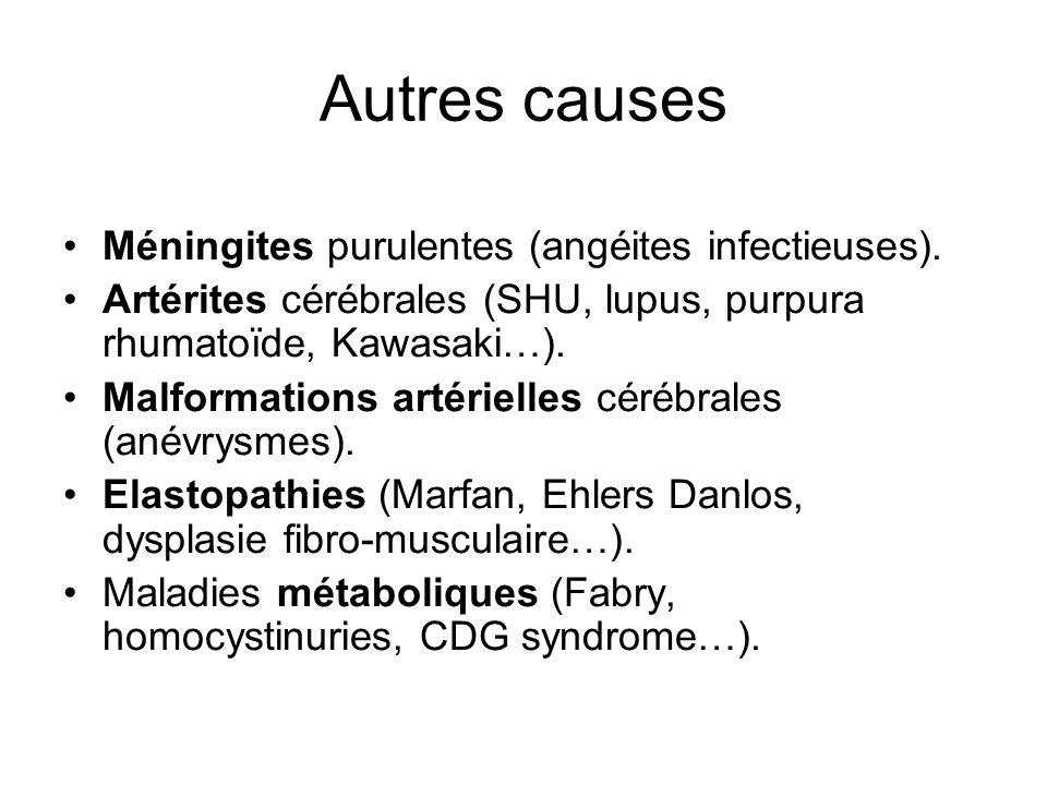 Autres causes Méningites purulentes (angéites infectieuses).