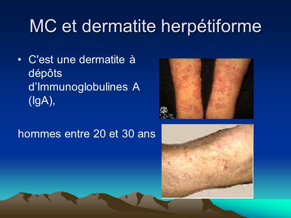 MC et dermatite herpétiforme