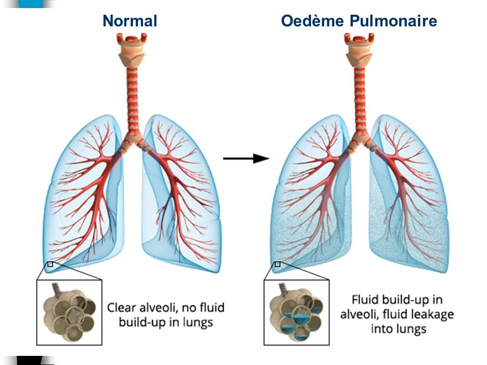 Normal Oedème Pulmonaire