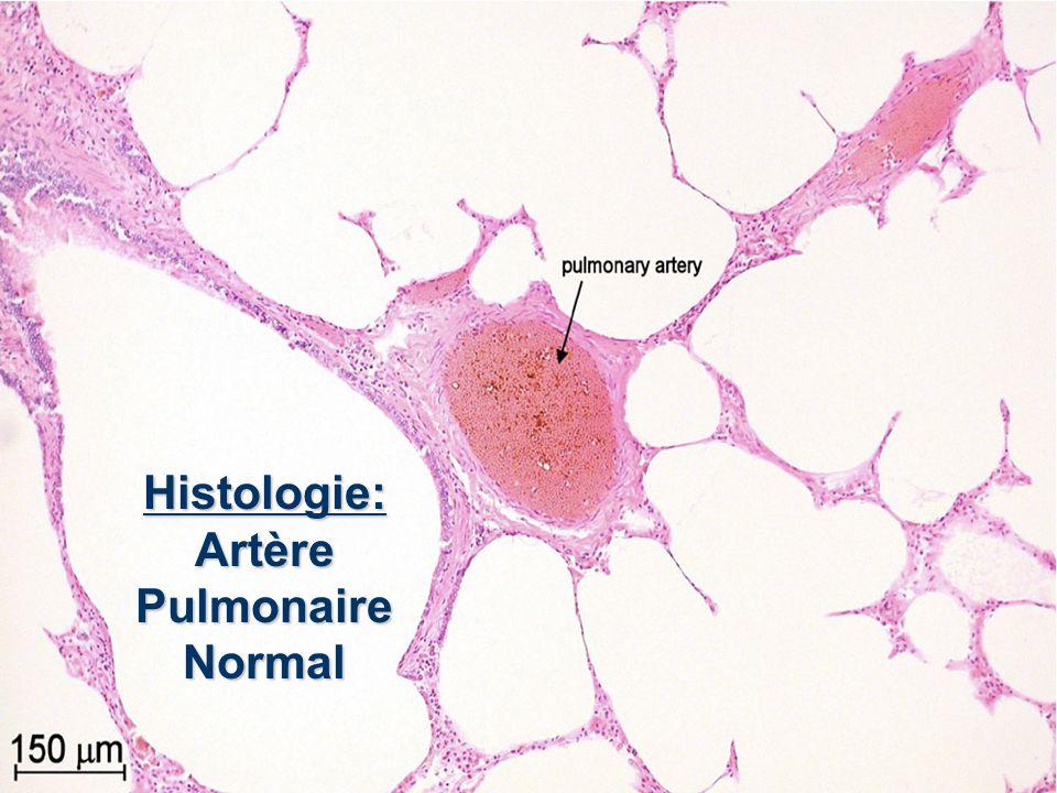 Histologie: Artère Pulmonaire Normal
