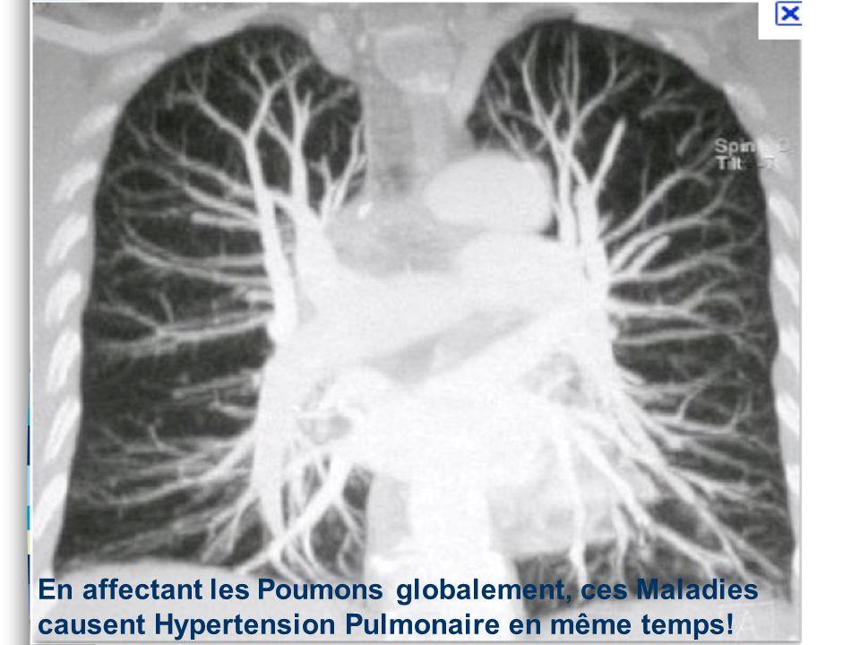 En affectant les Poumons globalement, ces Maladies