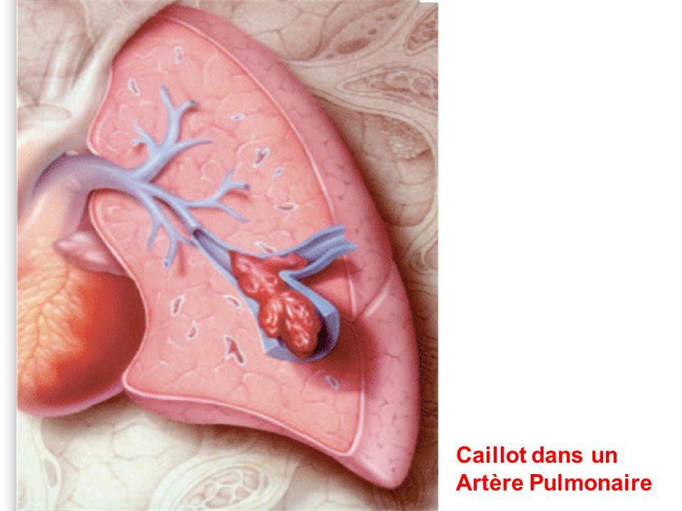 Caillot dans un Artère Pulmonaire