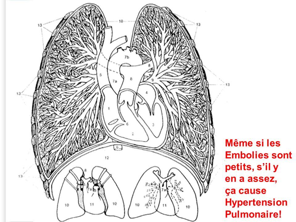 Même si les Embolies sont petits, s'il y en a assez, ça cause Hypertension Pulmonaire!