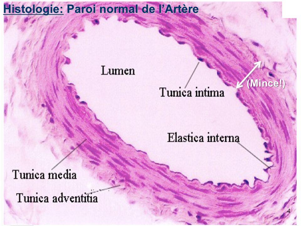 Histologie: Paroi normal de l'Artère