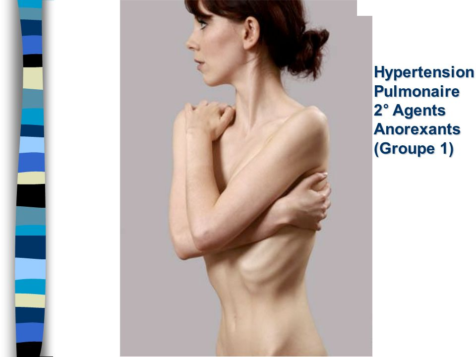 Hypertension Pulmonaire 2° Agents Anorexants (Groupe 1)