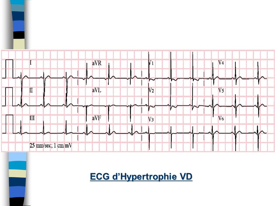 ECG d'Hypertrophie VD