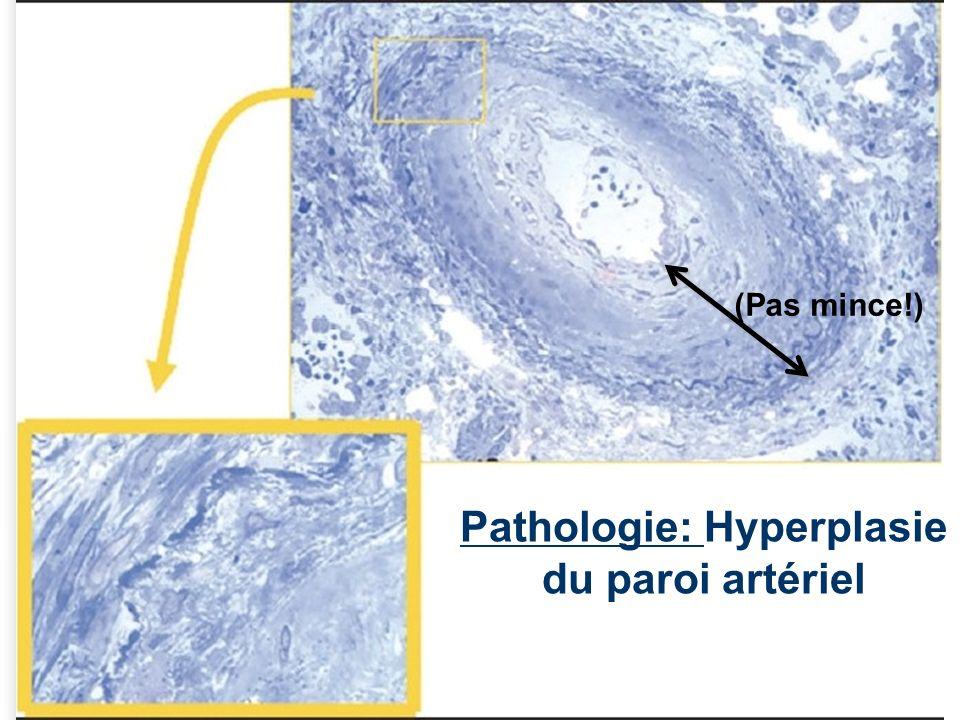 Pathologie: Hyperplasie du paroi artériel
