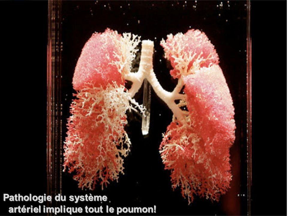 Pathologie du système artériel implique tout le poumon!