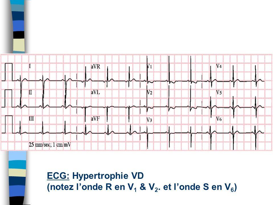 ECG: Hypertrophie VD (notez l'onde R en V1 & V2. et l'onde S en V6)