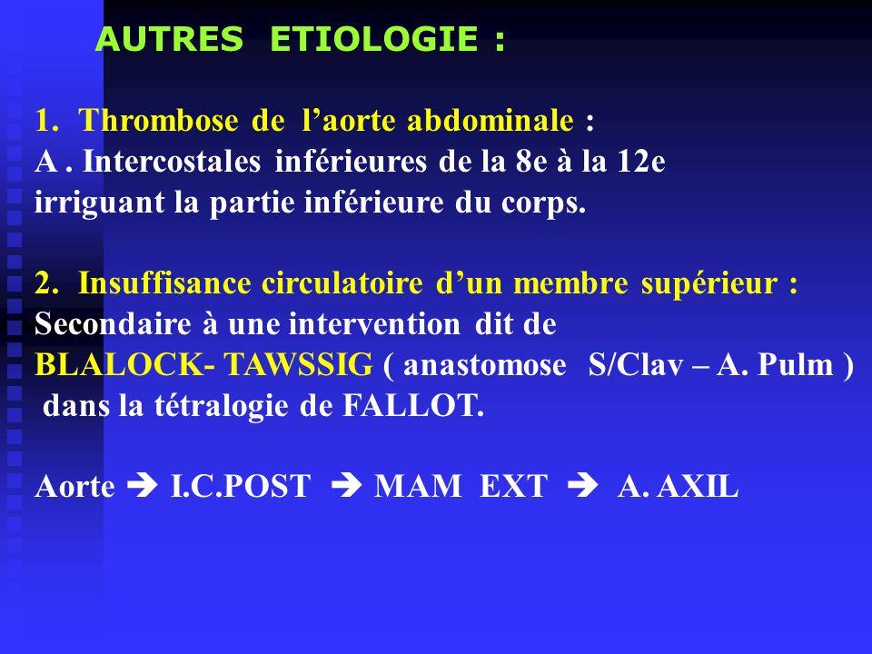 AUTRES ETIOLOGIE : Thrombose de l'aorte abdominale : A . Intercostales inférieures de la 8e à la 12e.