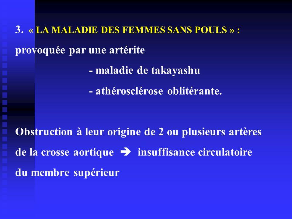 3. « LA MALADIE DES FEMMES SANS POULS » :