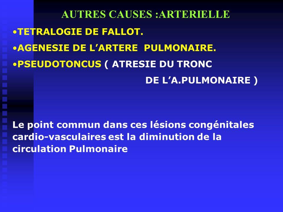 AUTRES CAUSES :ARTERIELLE