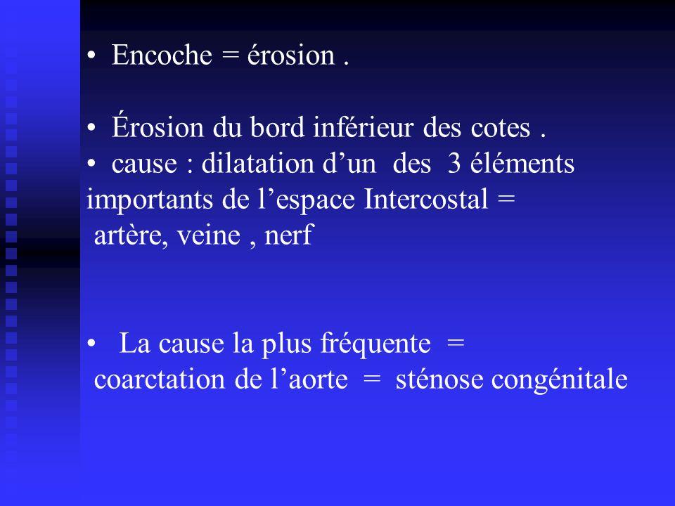 Encoche = érosion . Érosion du bord inférieur des cotes . cause : dilatation d'un des 3 éléments.