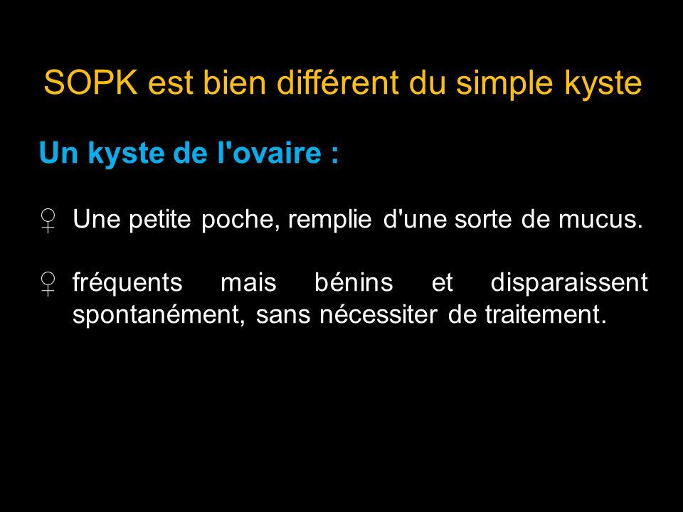 SOPK est bien différent du simple kyste