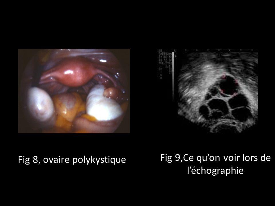 Fig 9,Ce qu'on voir lors de l'échographie Fig 8, ovaire polykystique