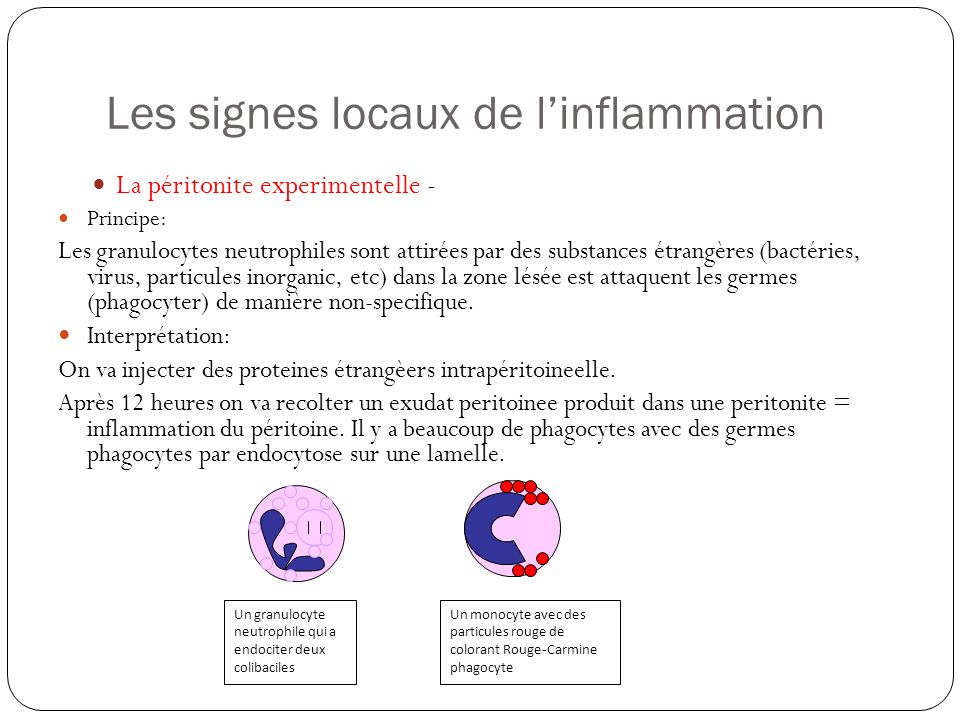 Les signes locaux de l'inflammation