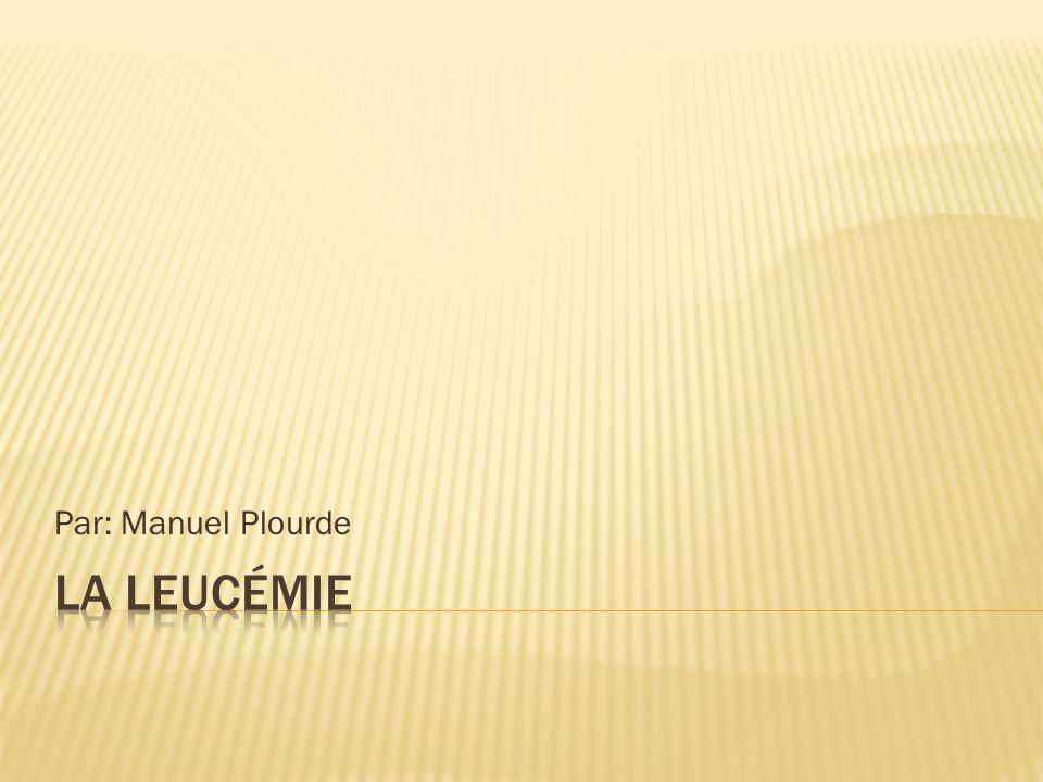 Par: Manuel Plourde La leucémie