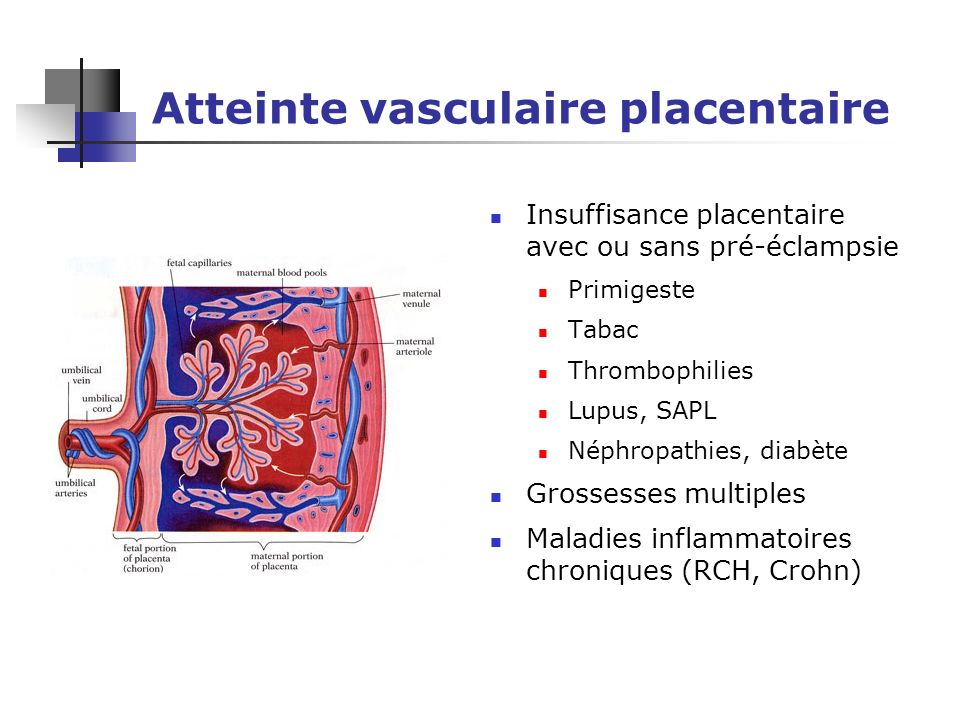 Atteinte vasculaire placentaire
