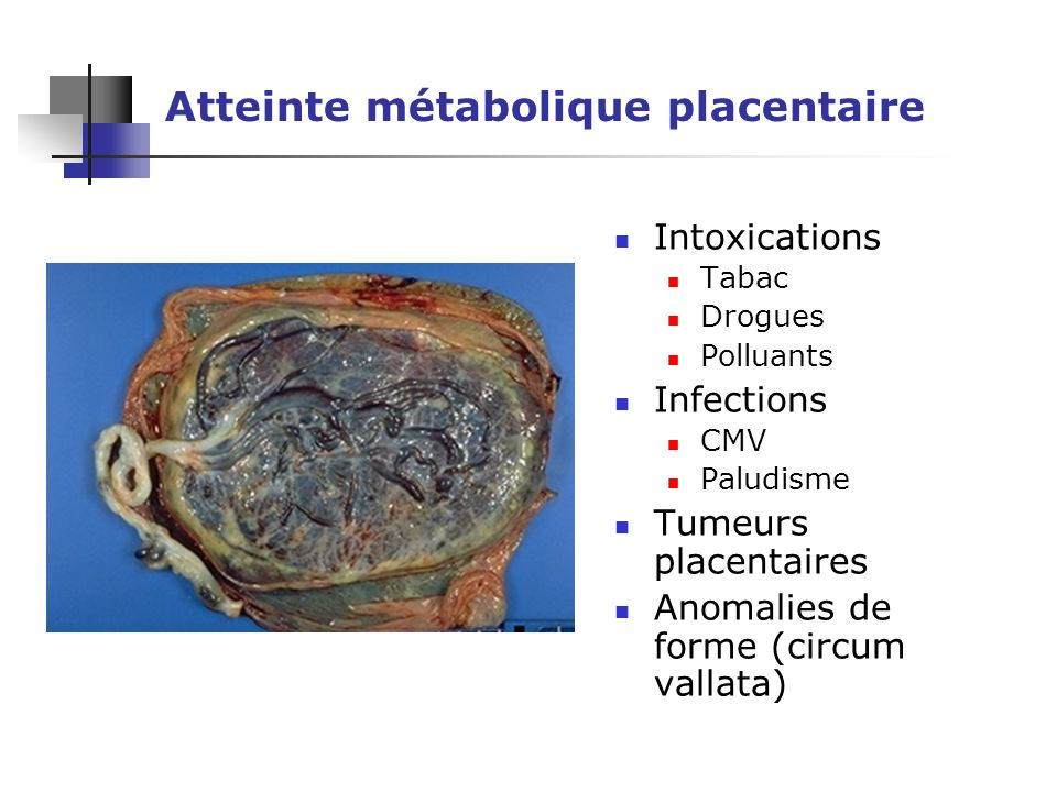 Atteinte métabolique placentaire