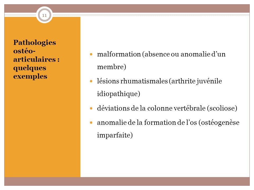 Pathologies ostéo-articulaires : quelques exemples