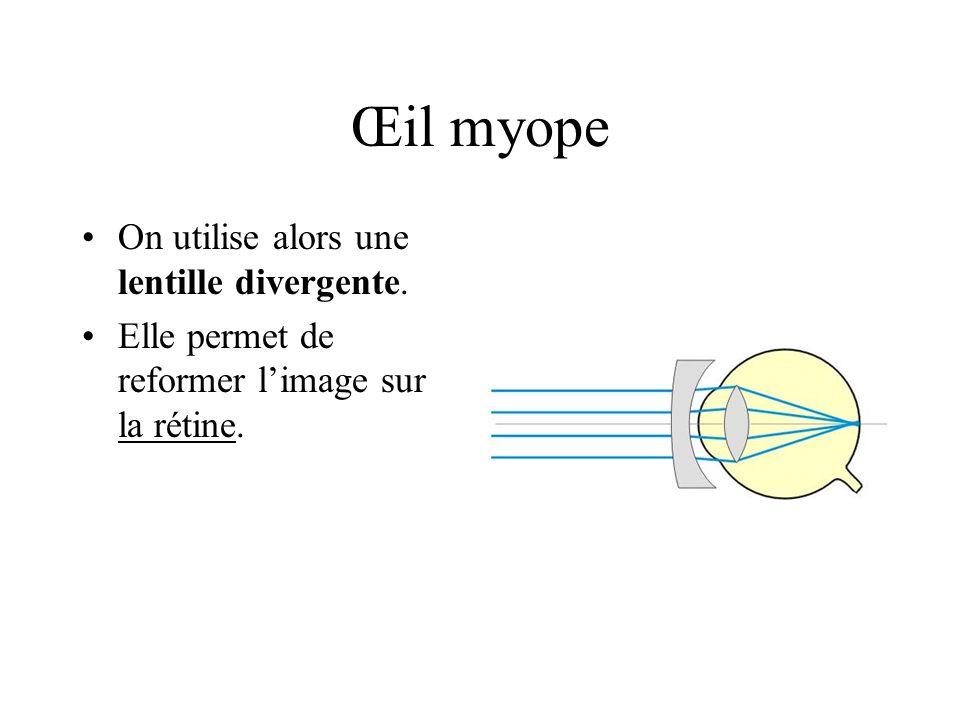 Œil myope On utilise alors une lentille divergente.