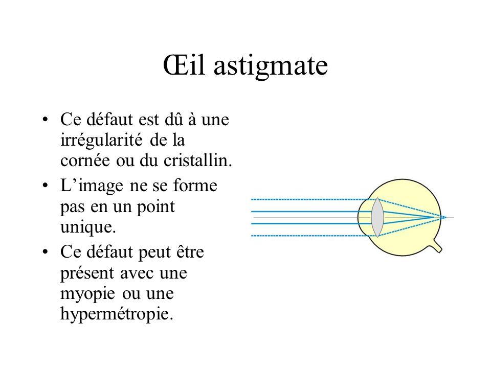 Œil astigmate Ce défaut est dû à une irrégularité de la cornée ou du cristallin. L'image ne se forme pas en un point unique.