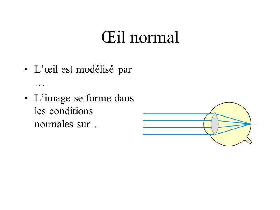Œil normal L'œil est modélisé par …