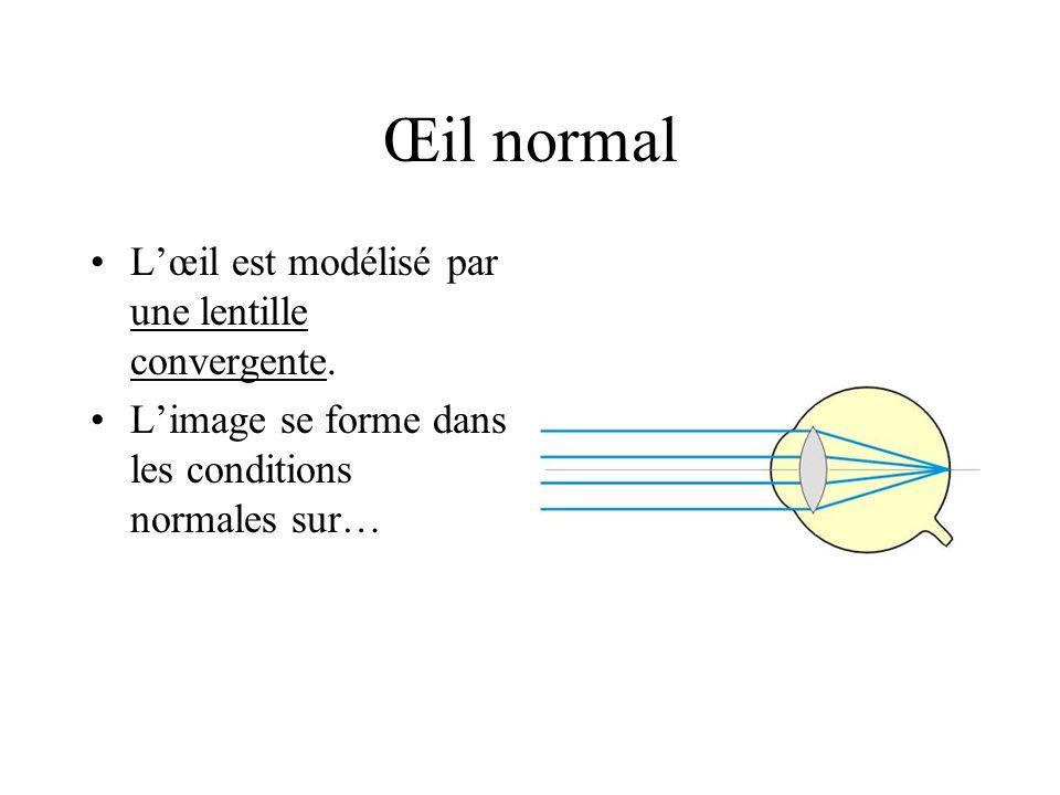 Œil normal L'œil est modélisé par une lentille convergente.